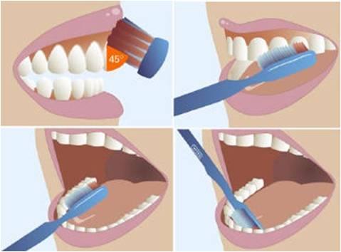 Quy trình chải răng