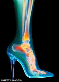 Mang giày cao gót cả ngày, mỗi ngày, có thể gây ra tình trạng viêm ở các ngón chân bị chèn ép, lòng bàn chân và gót chân bị cọ xát.