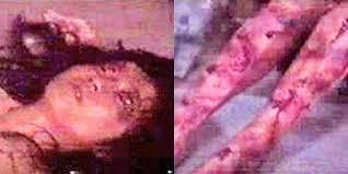 Trên khắp cơ thể nữ sinh xinh đẹp là những vết thương loang lổ, đẫm máu.