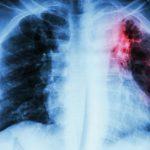 Bệnh lao phổi có lây không, lây qua đường nào, có nguy hiểm không?